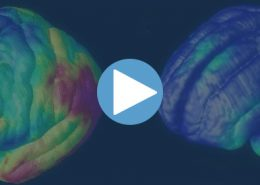 Neuro ciencia
